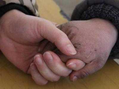 手指肚脱皮有几种原因 手指头发黄是什么原因