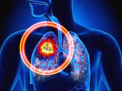 肺癌晚期病人吃什么好 肺癌晚期饮食