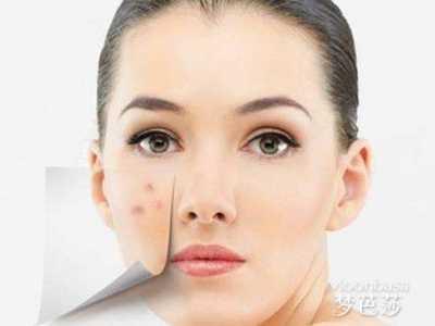 右脸长痘与什么原因有关 左脸颊长痘