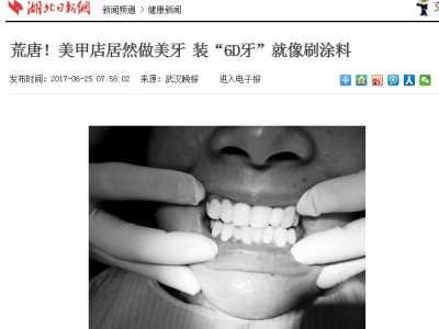 为什么一定要去正规医院 牙齿美白医院