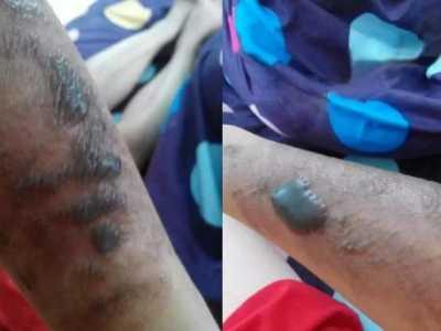 美容院脱毛造成全身大面积烧伤 激光脱毛属于医疗美容